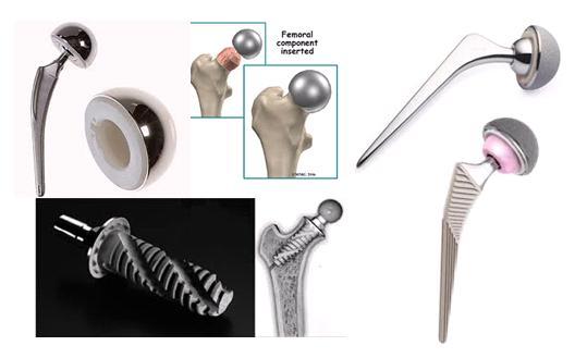 Lựa chọn loại khớp, lựa chọn khớp háng, Thay khớp háng, Phẫu thuật thay khớp háng, Thay khớp háng toàn phần, thay khớp háng toàn phần không xi măng, TKH, Kỹ thuật thay khớp háng không xi măng, kỹ thuật thay khớp háng toàn phần không xi măng, thay khớp háng bán phần, thay khớp háng bán phần có xi măng, thay khớp háng bán phần không xi măng, TS.BS Nguyễn Văn Hoạt, Bệnh viện Đại học Y Hà nội, BV ĐHY Hà Nội, Thay khớp, Thay khớp nhân tạo